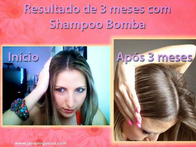 Resultado de 3 meses- Shampoo Bomba